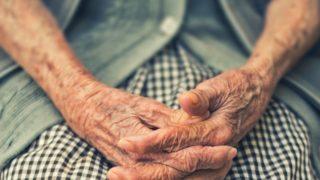 老化した手